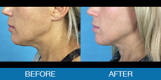 View Exilis™ Before and After Photos